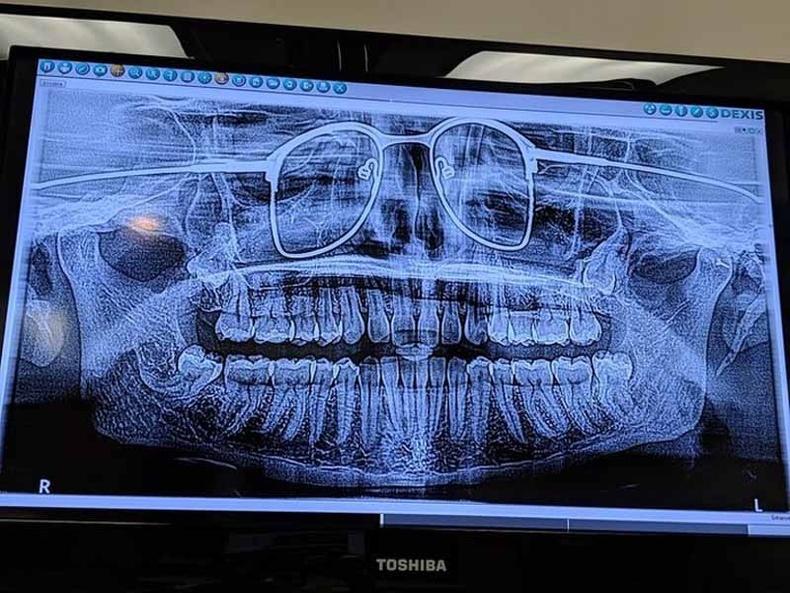 Хүний эрүү хэсгийн бүтэн зураг. Энэ хүн шилээ авахаа мартжээ.