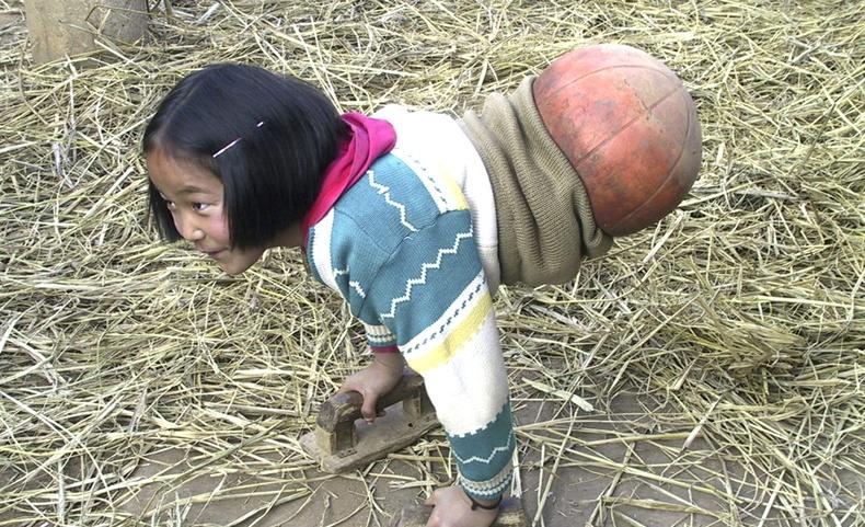 """Өрөвдмөөр """"бөмбөгөн хөлт"""" охин дэлхийд нэрээ дуурсгасан тамирчин болсон түүх"""