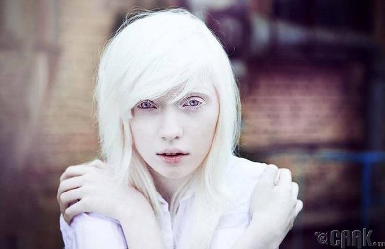Алдартай альбиносууд