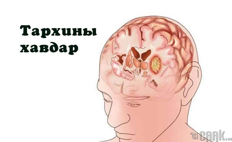 Тархины хавдар