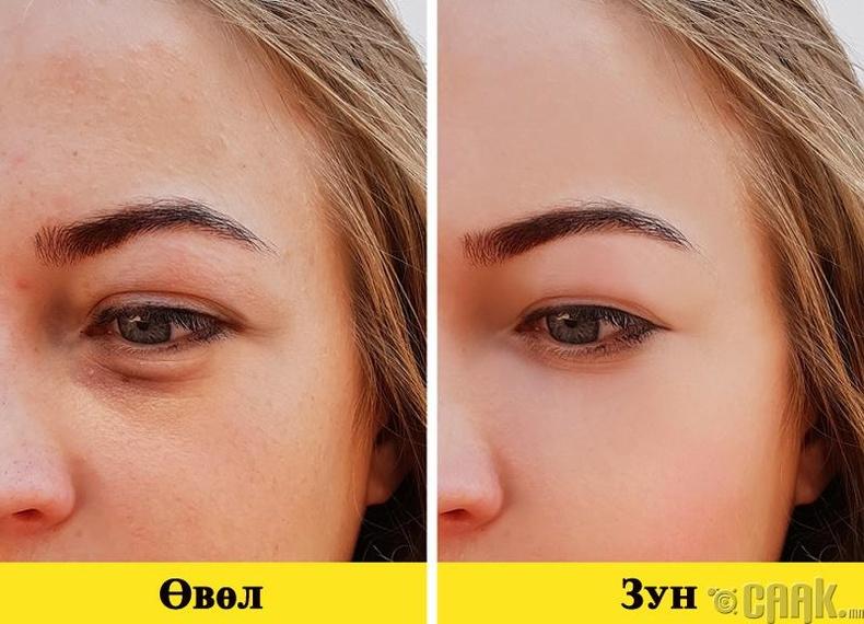 Нүдний доорх хар тойрог