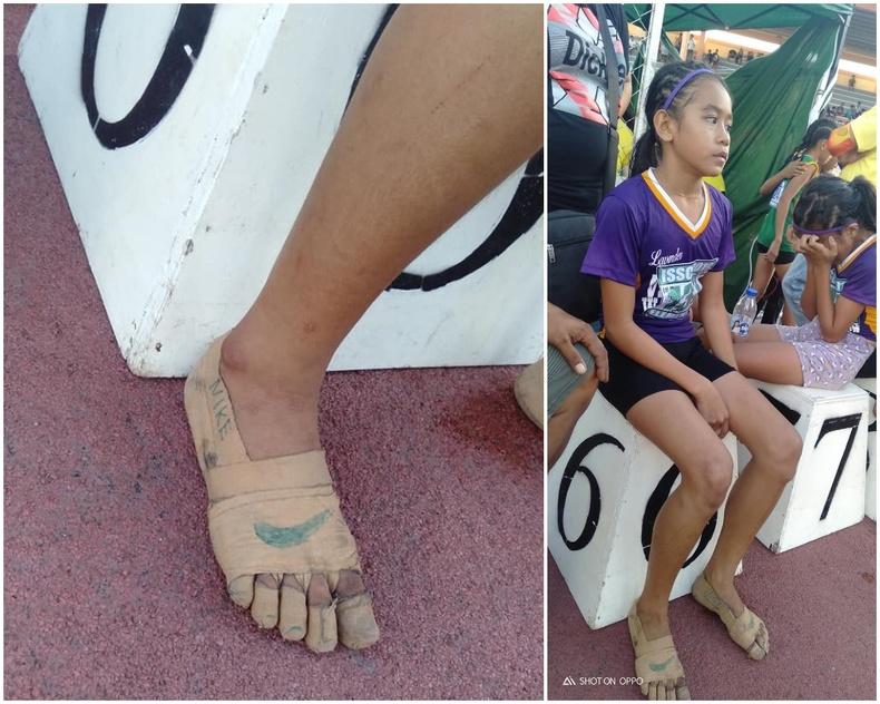 11 настай Филиппин охин пүүзгүй ч хөлөө наалтаар ороогоод сургууль хоорондын хөнгөн атлетикийн тэмцээнд оролцож, гурван алтан медаль хүртжээ