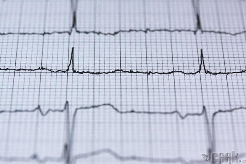 Зүрхний шигдээс болох эрсдэл буурна