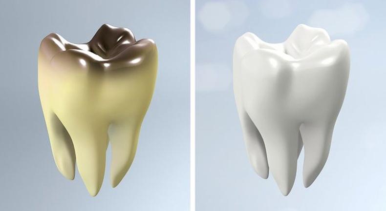 Шүдний өвчлөл буурна
