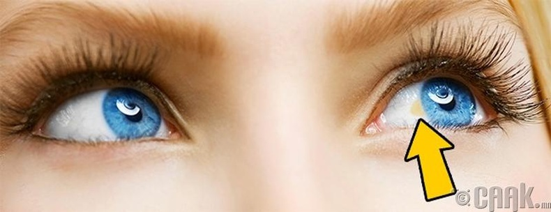 Нүдний солонгон бүрхэвчинд шар толбо гарах