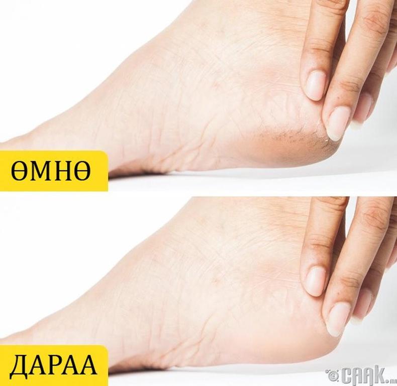 Оливийн тос нь хөлийг зөөлрүүлдэг
