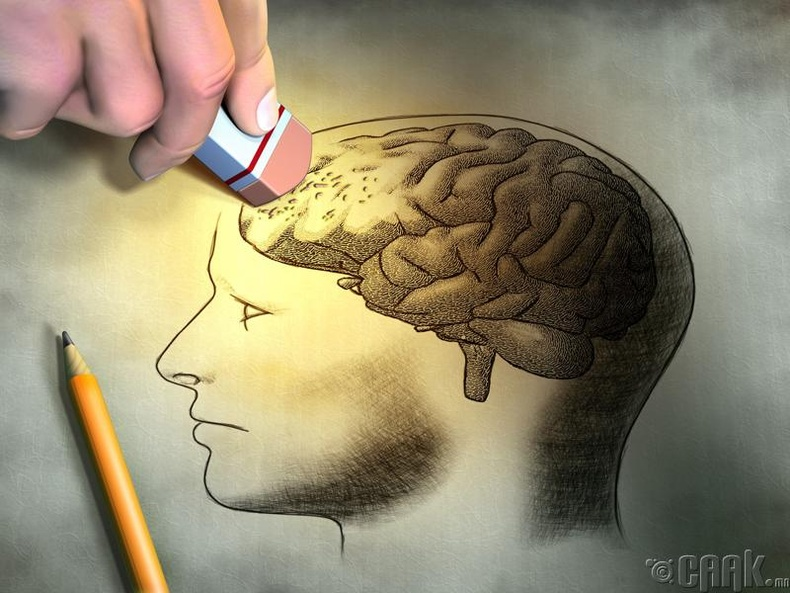Альцгеймер өвчин