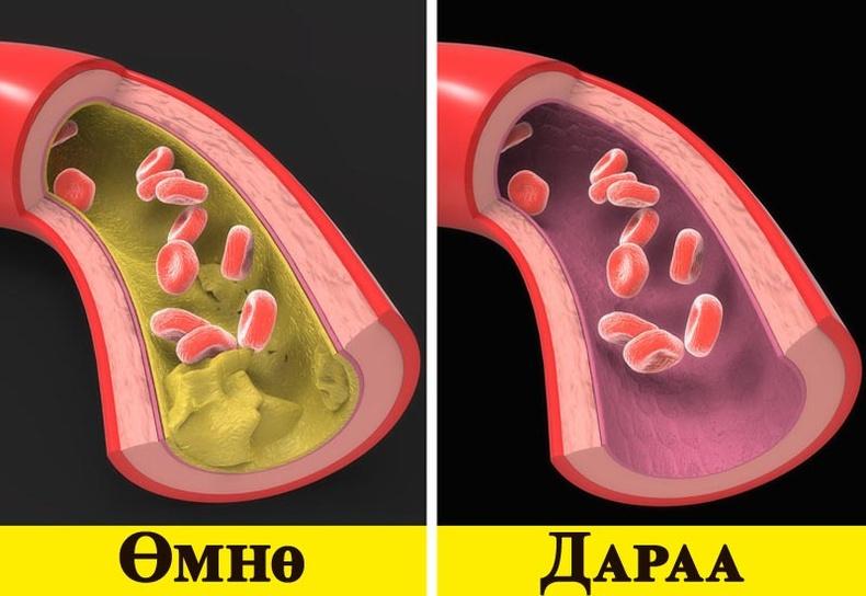 Зүрхний өвчнөөр өвдөх эрсдлийг бууруулна