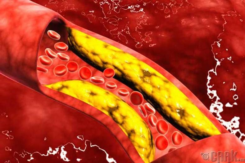 Артерийн судсыг цэвэрлэх арга