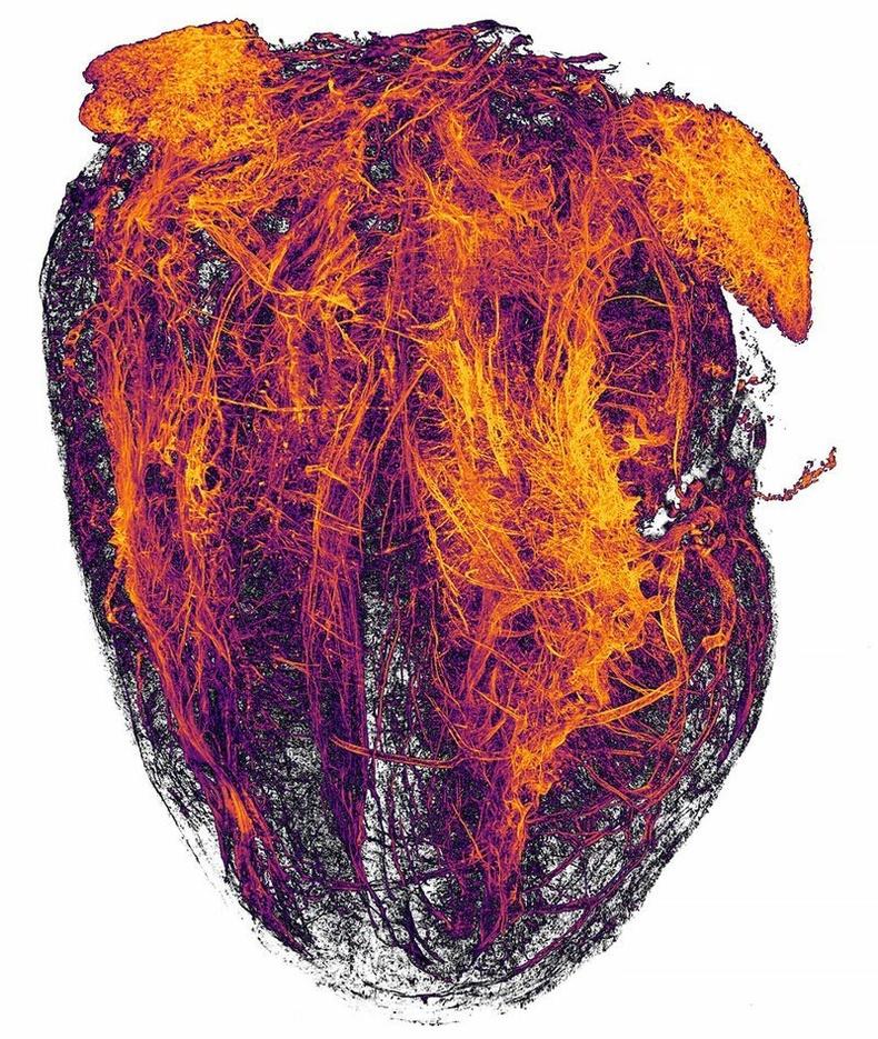 Хулганы зүрхэн дэх цусны судасууд
