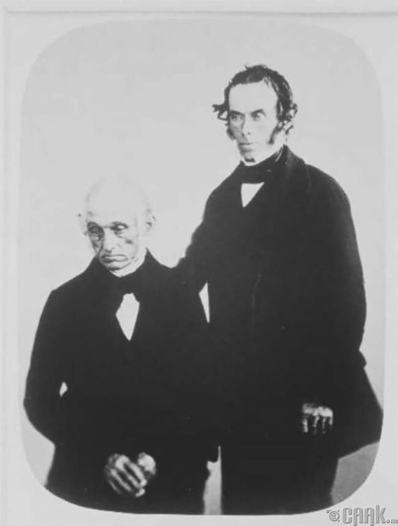 """Жон Бэйли, хүү Томас нар 1858 онд """"хүнд хэлбэрийн сэтгэл гутрал"""" өвчнөөр хэвтсэн."""
