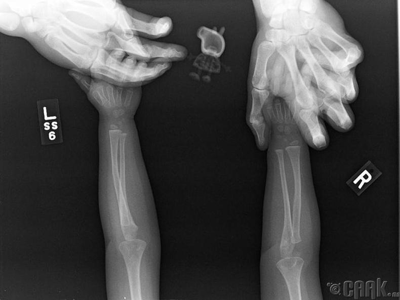 Нэгэн охин гарынхаа рентген зургийг авхуулахдаа дуртай тоглоомоо хамт авч оржээ. Одоо түүний Пеппи тоорой хэрхэн харагдахыг мэддэг боллоо.