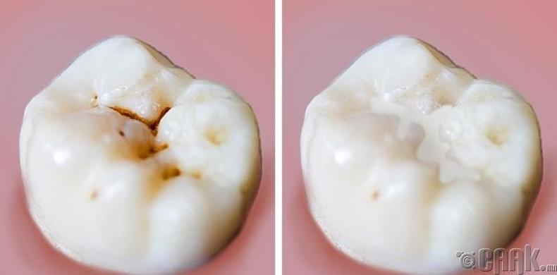 Хүүхдэдээ шүд арчлах тухай зааварладаггүй