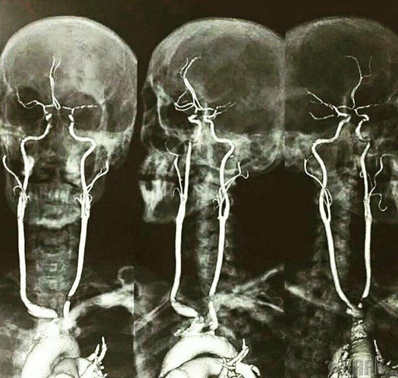 Артерын судсууд