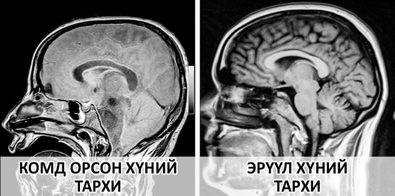 Хүний биеийн тухай ихийг өгүүлэх сонирхолтой рентген зургууд