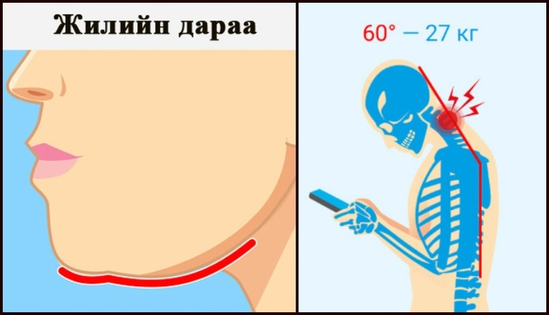 Утас, компьютер их ширтсэнээс үүсдэг хүзүү, нурууны өвчнийг хэрхэн эмчлэх вэ?