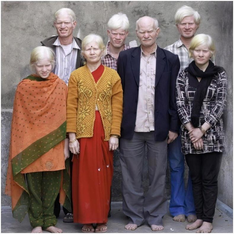 Албино өвчтэй Энэтхэгийн гэр бүл