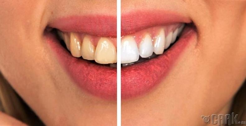 Шүдний эмнэлэгт шүдээ цэвэрлүүлж байгаарай
