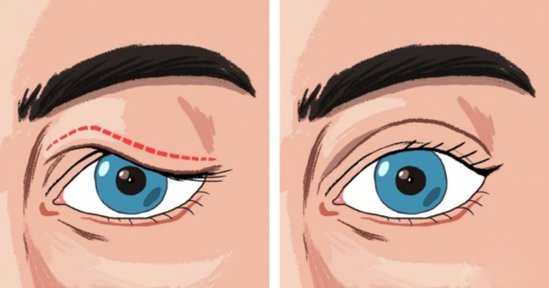 Унжсан зовхи нь овор ихтэй харагдуулахаас гадна, хараа муудахад нөлөөлдөг гэдгийг мэдэх үү?