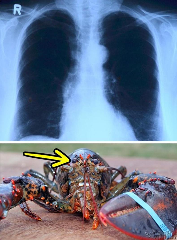 Хавч болон рентгений төхөөрөмж