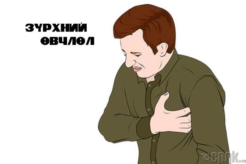 Зүрхний өвчлөл