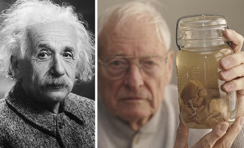 Эйнштейнийг нас барсны дараа түүний тархинд юу тохиолдсон бэ?