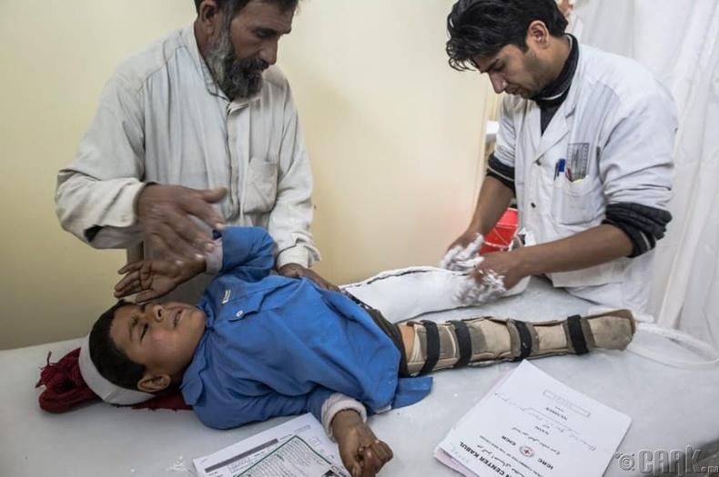 Полио (Polio)