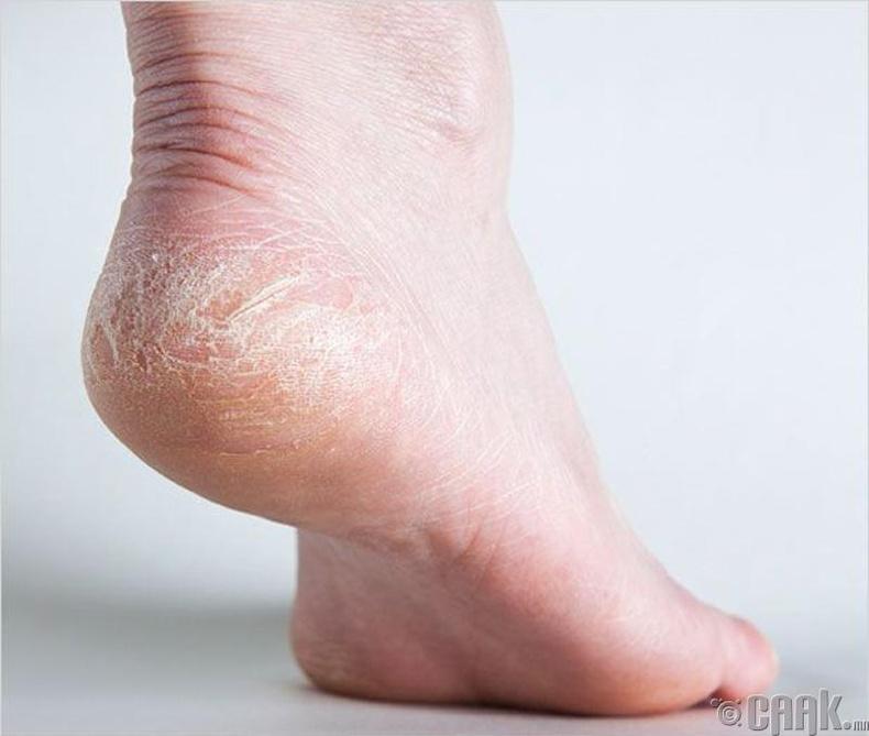 Хөлийн өсгийний арьсыг хэрхэн зөөлрүүлэх вэ?