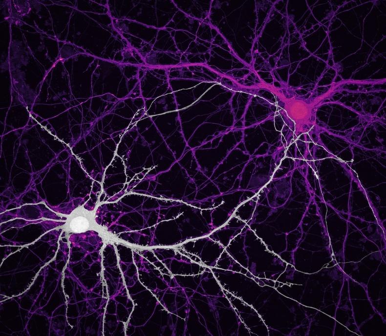 Тархин дахь мэдрэлийн холбоос