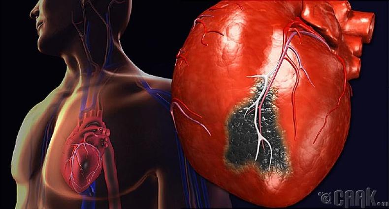 Зүрхний шигдээс өвчинтэй эсэхийг мэдэх шинж тэмдэг: