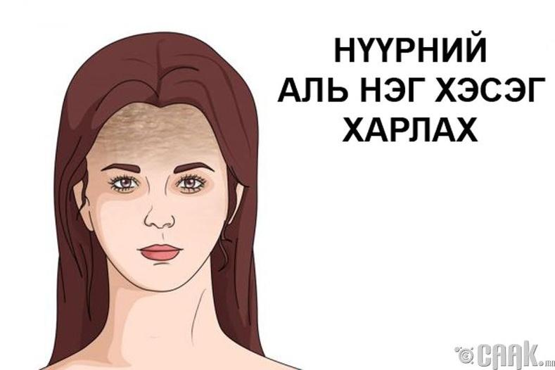 Нүүрний аль нэг хэсэг харлаж, өнгө зүсээ алдах