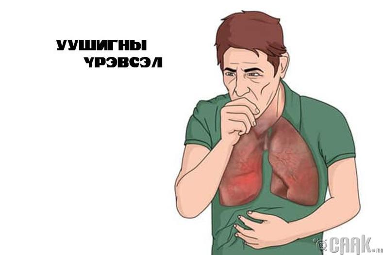 Уушгины үрэвсэл