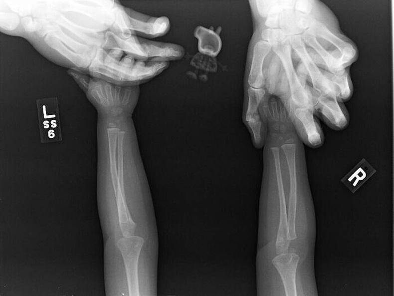 Пэппа гахайтайгаа рентген зураг авхуулахыг хүссэн нь