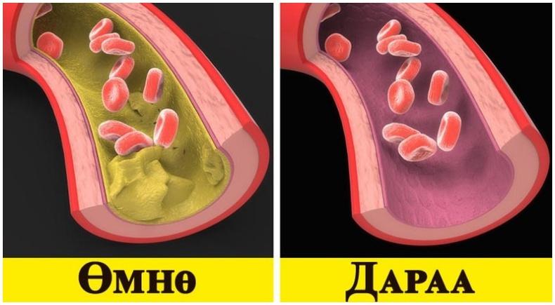 Загасны тос уугаад зүрх судасны өвчнөөс сэргийлээрэй!