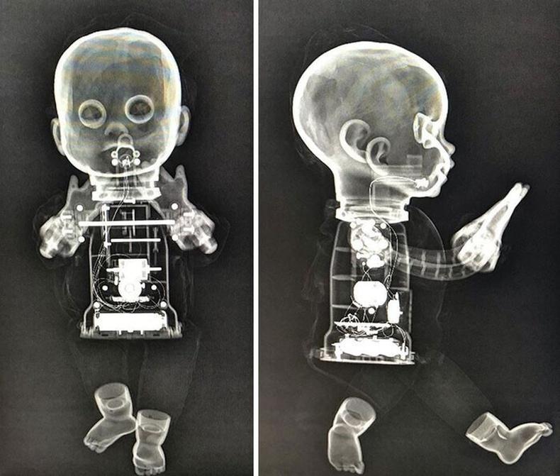 Хүүхэлдэйний рентген