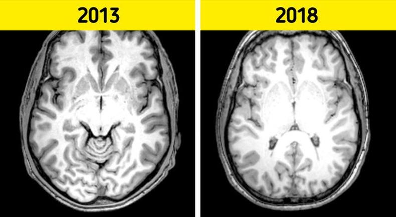 Мэдрэл судлаачдын тогтоосон тархийг залуужуулах үр дүнтэй 9 зуршил