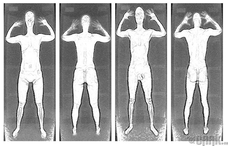 Рентген туяаны нөлөөлөл