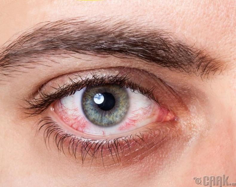 Нүдний торлог бүрхэвчний цусны судаснууд гэмтэх