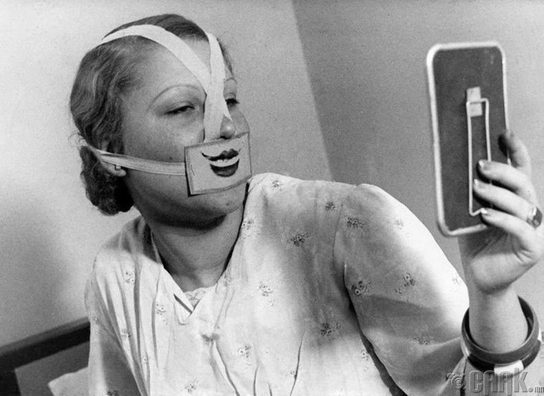 Сэтгэл гутралын эмчилгээнд орж буй бүсгүй - Будапешт, 1937 он