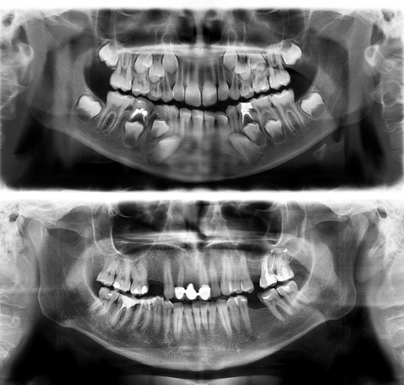 7 настай болон 30 настай хүний шүд