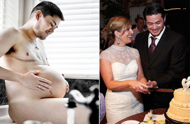 Дэлхийн хамгийн анхны жирэмсэн эрийн хачирхалтай түүх