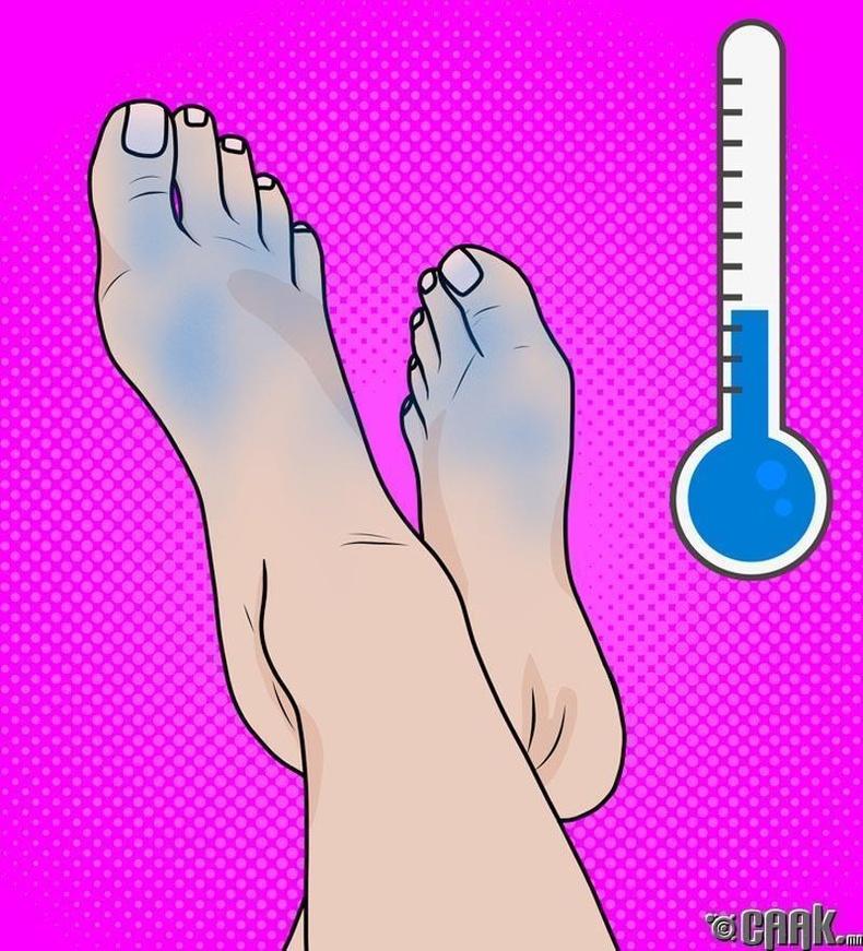 Хүйтэн хөл