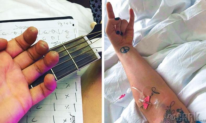 Дуучин Лэди Гага (Lady Gaga) фибромольгия өвчин тусчээ