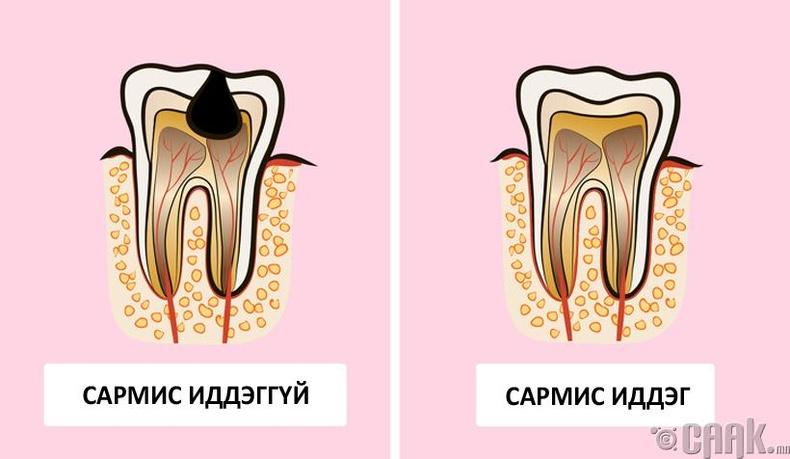Шүдний өвчин намдана
