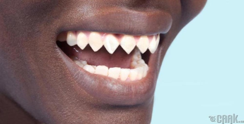 Вампир шүд