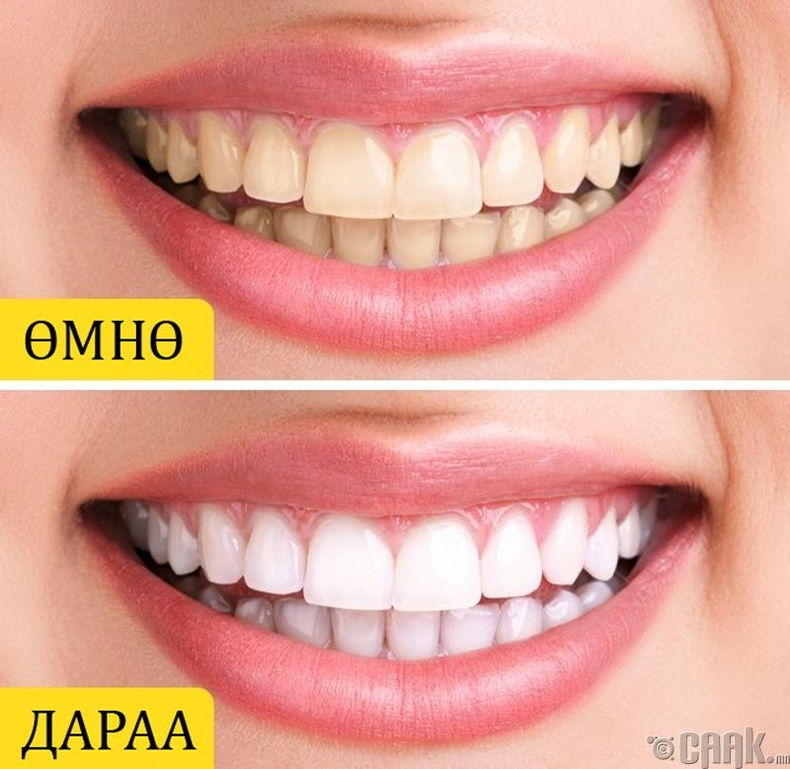 Гүнжидийн тосоор шүдээ цайруулах