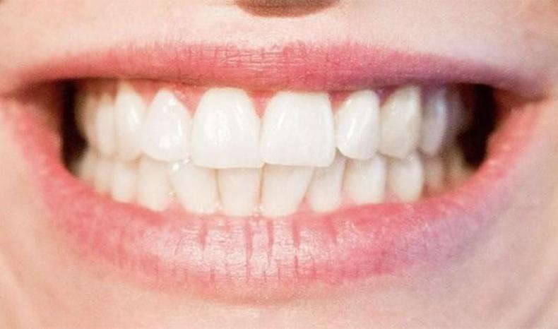 Шүдний өвчнийг үл тоох