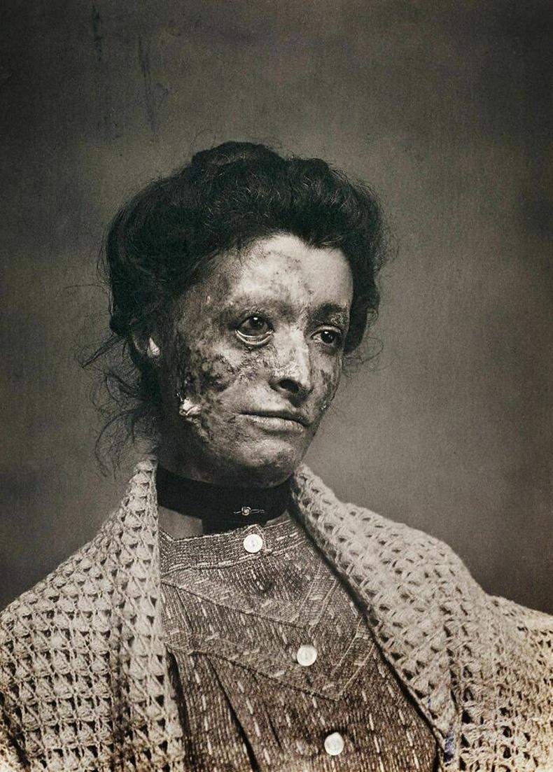 Тэмбүү өвчнөөр шаналж буй эмэгтэй - Виктория хатны үеийн Англи