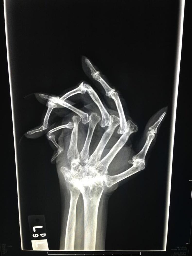 Rheumatoid arthritis өвчтэй хүний гар