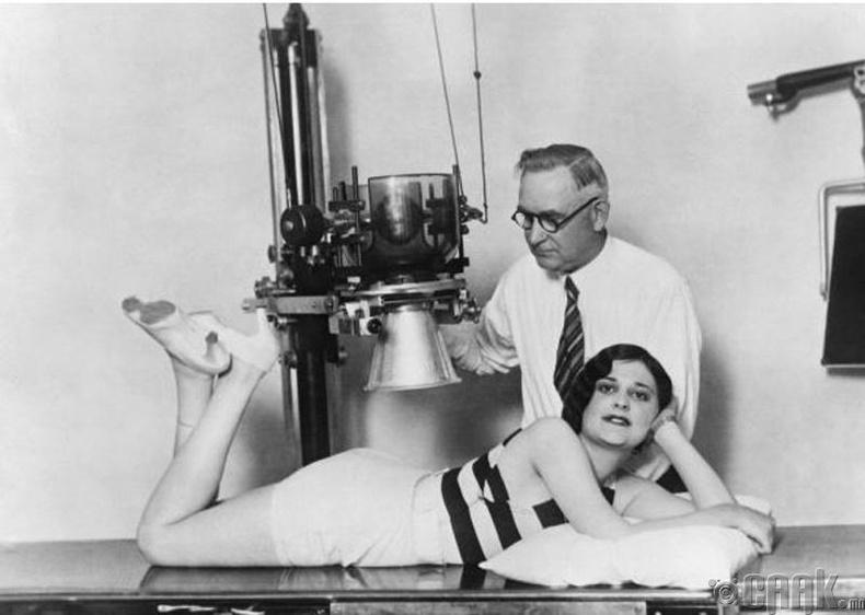 """""""Төгс нуруу"""" тэмцээнд оролцогч мэргэжлийн бариа засалчид нуруугаа шалгуулж байна - 1930-аад он"""